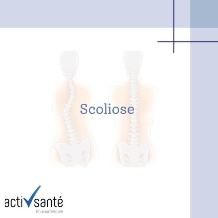 Scoliose-activ-sante-geneve-physio-rive